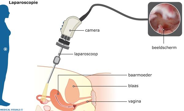 Nierstenen en zwangerschap